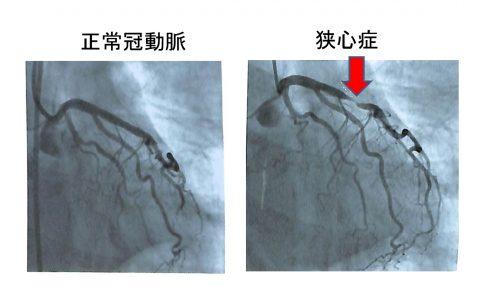 冠動脈04