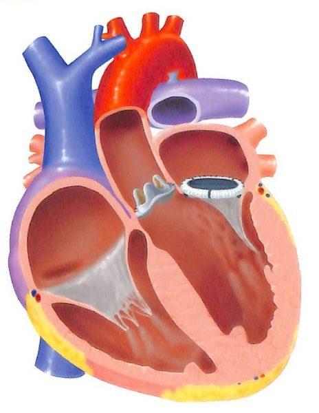 大動脈弁03